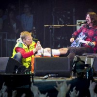 dave grohl leg break